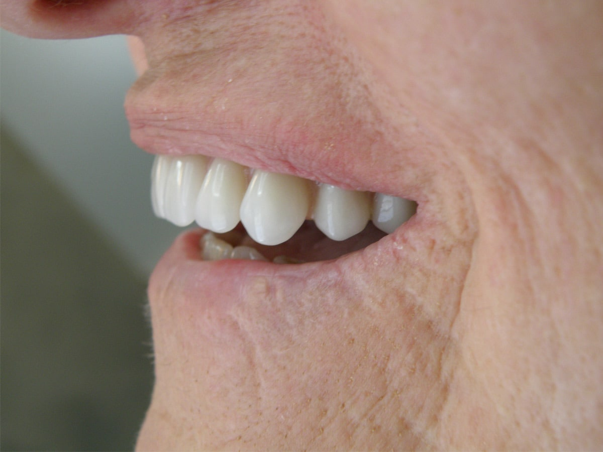 Aesthetic denture clinic dental prosthetist 138 marius st tamworth aesthetic denture clinic pic 1 solutioingenieria Image collections