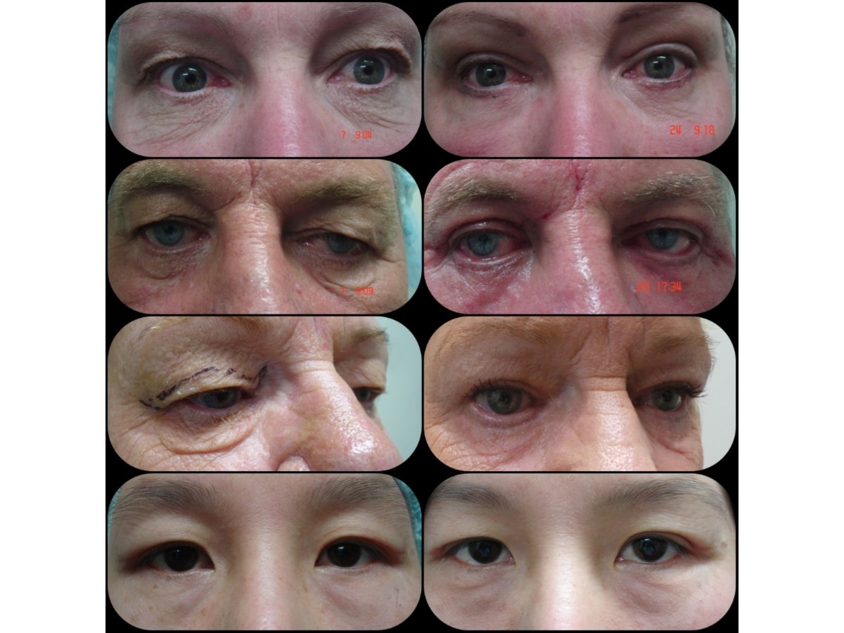 The Cosmetic Surgery Amp Skin Cancer Centre Cosmetic