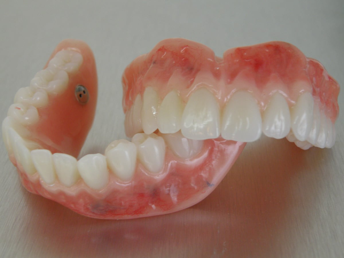 Aesthetic denture clinic dental prosthetist 138 marius st tamworth aesthetic denture clinic pic 10 solutioingenieria Image collections